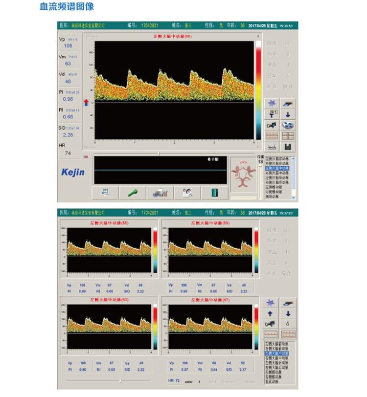KJ-2V4M2021年欧冠直播平台多深度切换
